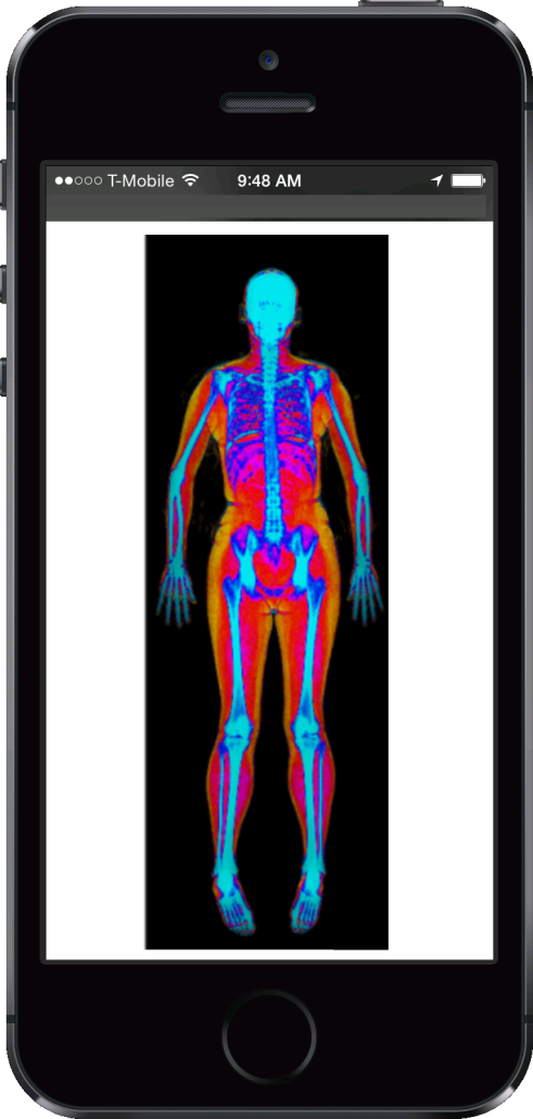 This is what your body composition scan will look like