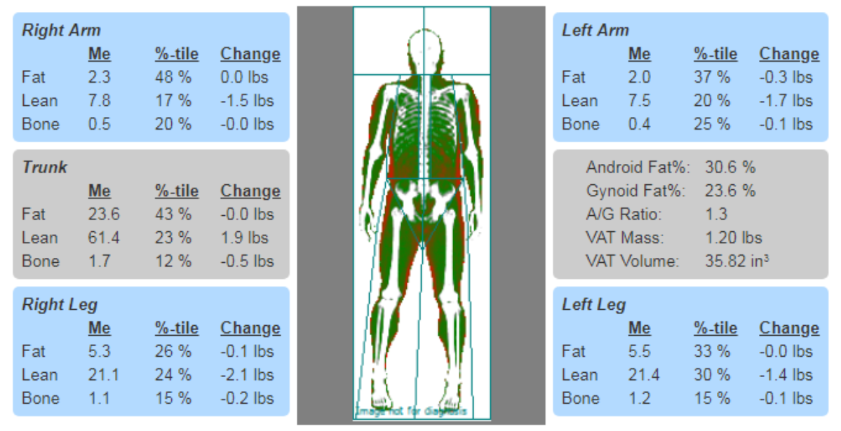 DXA body composition comparisons using percentiles